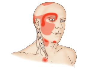 Les 4 points gâchettes au sein du chef sternal du SCOM (croix) et les zones de douleurs primaires et secondaires.